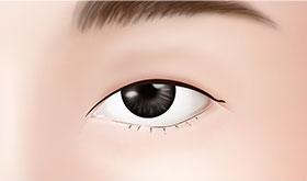 how to change single eyelid to double eyelid
