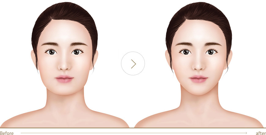 facial line reduction
