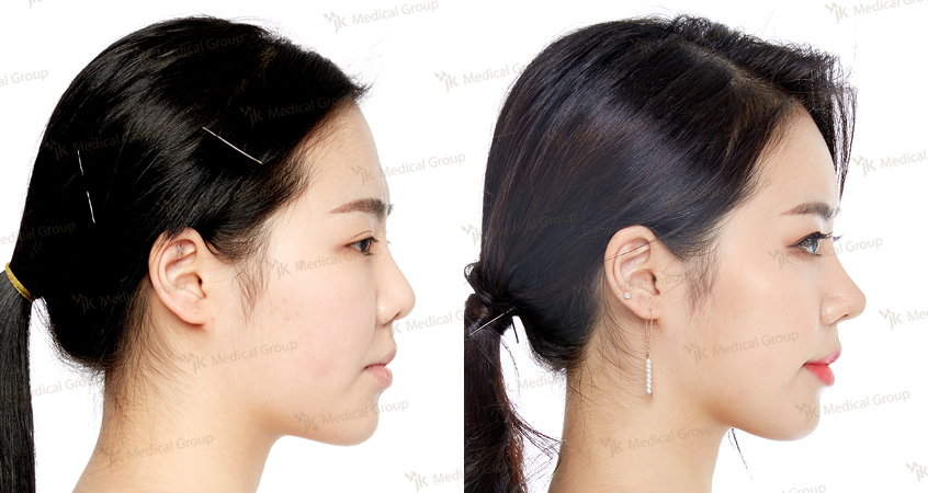 Nose Surgery, Epicanthoplasty, Forehead Surgery