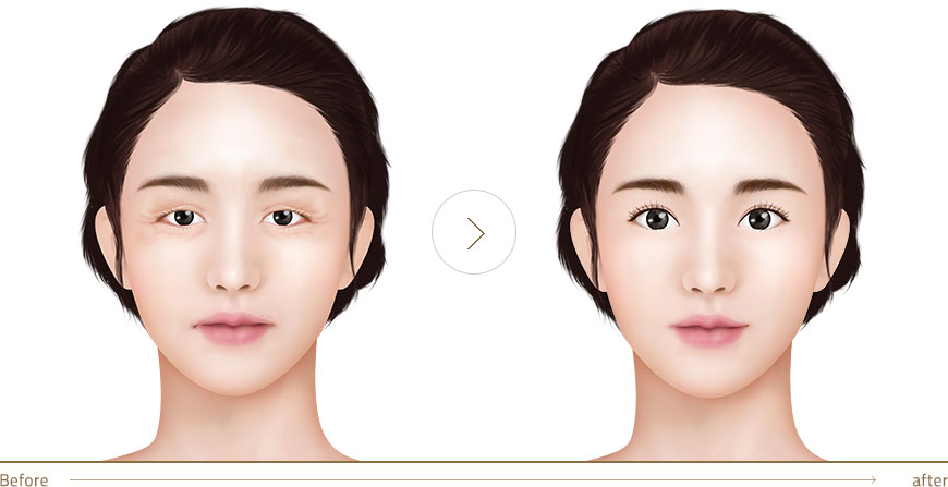 Middle age eye surgery for aging eyelids and purses under
