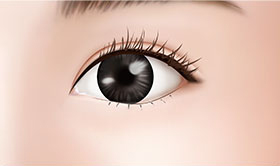 Beautiful, alive, and lovely impression, double-eyelid surgery | JK