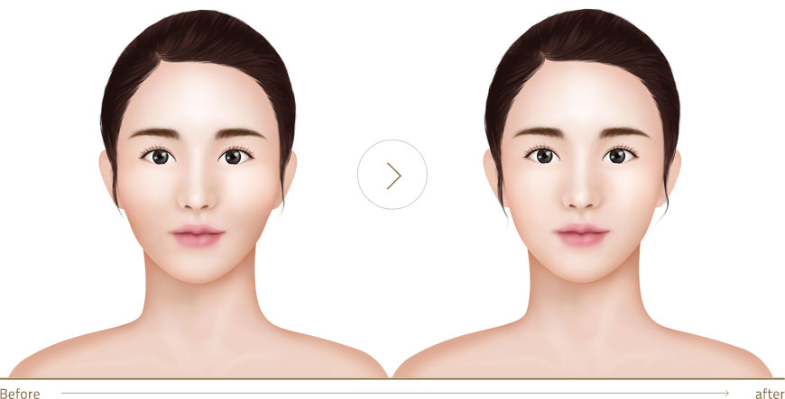 Curvy Shape Of Face Prevention Of Cheek Skin Lexity Cheek Lifting