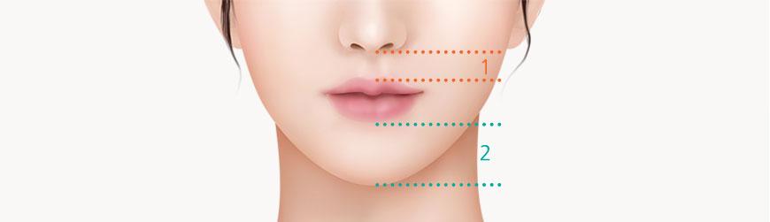 Face-center philtrum plastic surgery for facial balance ㅣ