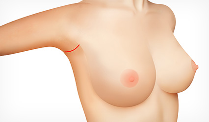 An incision made in the deepest part of the armpit fold
