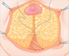 Areola Incision Method
